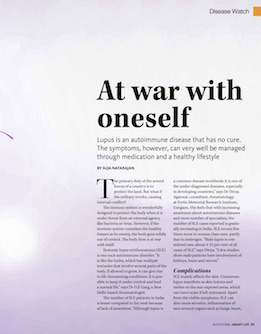 Lupus-article2